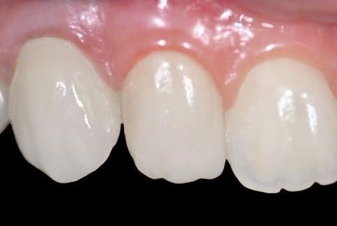 Le faccette dentali come le lenti a contatto